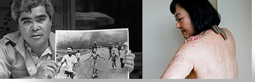 (Left) Photo of children fleeing napalm attack, which appeared on the cover of Newsweek at the time; (Right) The girl in the photo on the left, now a woman, showing her scars from being burnt by the napalm.
